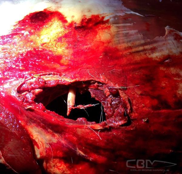 cbmexit wound.jpeg